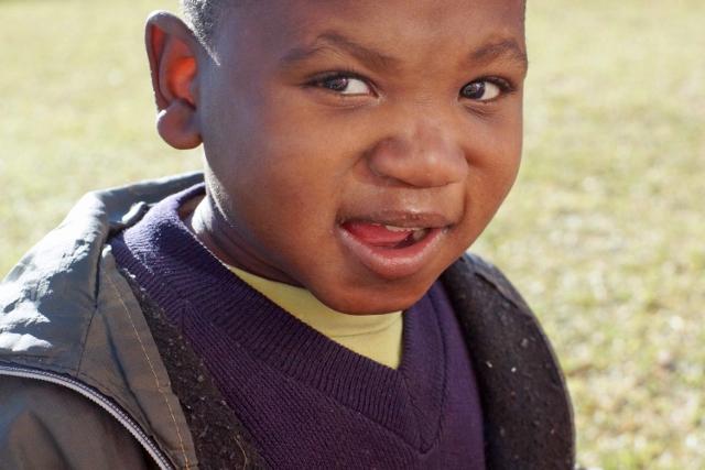 Alex, Joel's Place, Zimbabwe, malnutrition, developmental disability